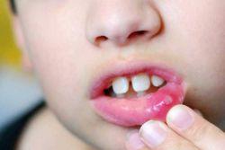 знакови стоматитиса и лечење код деце