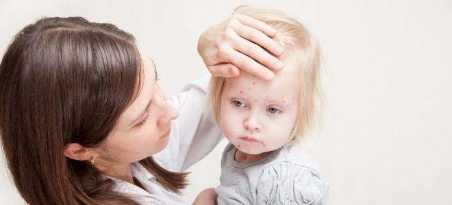 Как начинается стрептодермия у детей