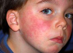 Objawy alergii u dzieci
