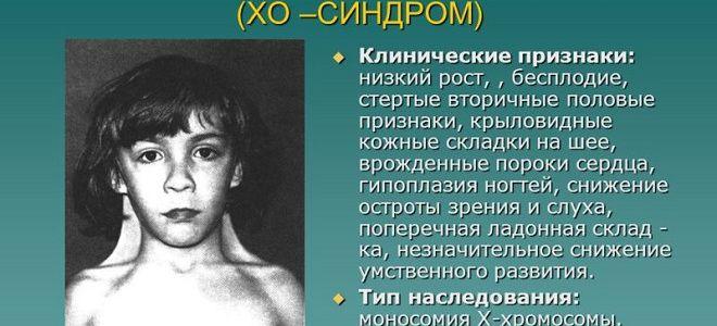 Синдром Шерешевского Тернера симптомы