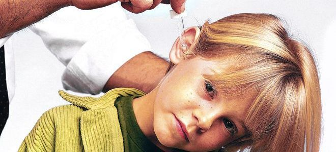 почему болят уши у детей