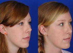 ponovno plastezo vrha nosu
