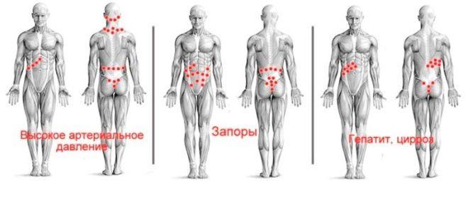 Гирудотерапия точки присасывания пиявок схемы два