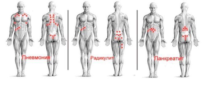 Гирудотерапия точки присасывания пиявок схемы четыре