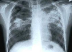 pierwsze oznaki gruźlicy u dzieci