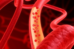 arterioskleroza simptoma žila