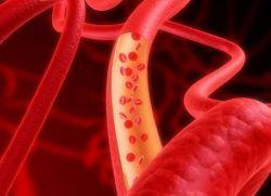 Vzrok vaskulitisa