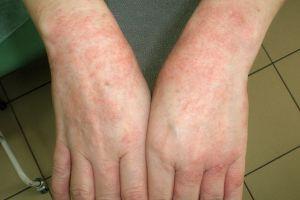 с какво изглежда алергия?