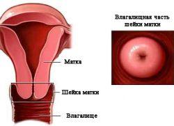 što izgleda zdrava maternica