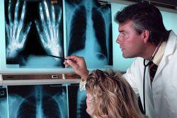 różnica artroza od artretyzmu