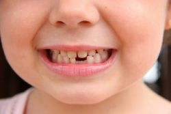 који зуби пада у деци