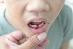 шта први зуби пада