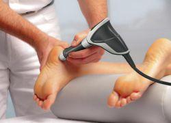 leczenie ostróg pięty za pomocą radioterapii